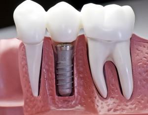 dantu implantavimas