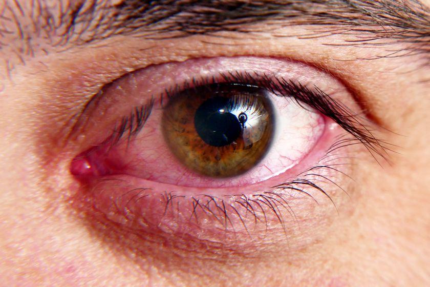 4 dažniausiai pasitaikančios akių ligos ir kaip jų išvengti