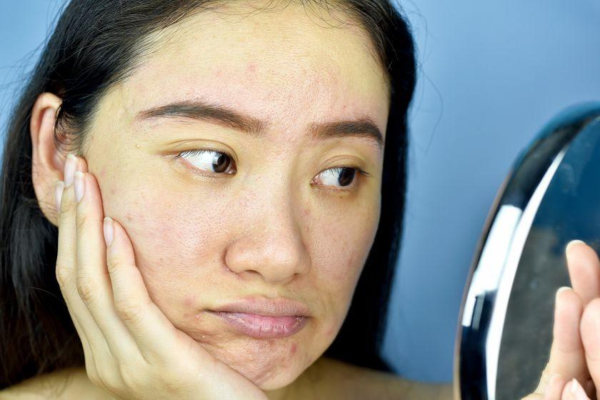 Veido odos priežiūra žiemą: 4 patarimai iš vizažisto